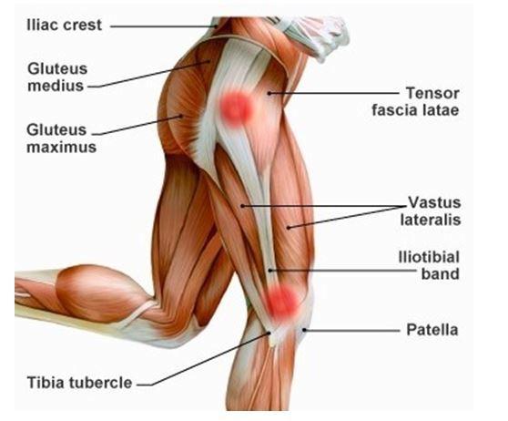 Dolor de rodilla rodilla del corredor o s ndrome de la - Dolor en la parte interior de la rodilla ...
