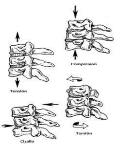 Ejercicios o movimientos que producen lesione en la columna vertebral