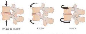 Ejercicios-o-movimientos-que-producen lesiones-en-la-columna-vertebral-o-raquis-2