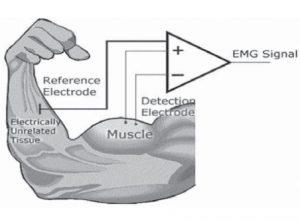 Electromiografia-de-la-actividad-de-los-gluteos-en-el-ejercicio-de-puente-que-posicion-es-la-mas-correcta